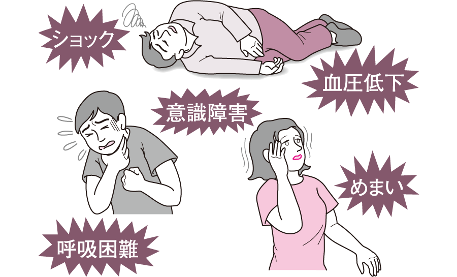 アナフィラキシーショックの症状