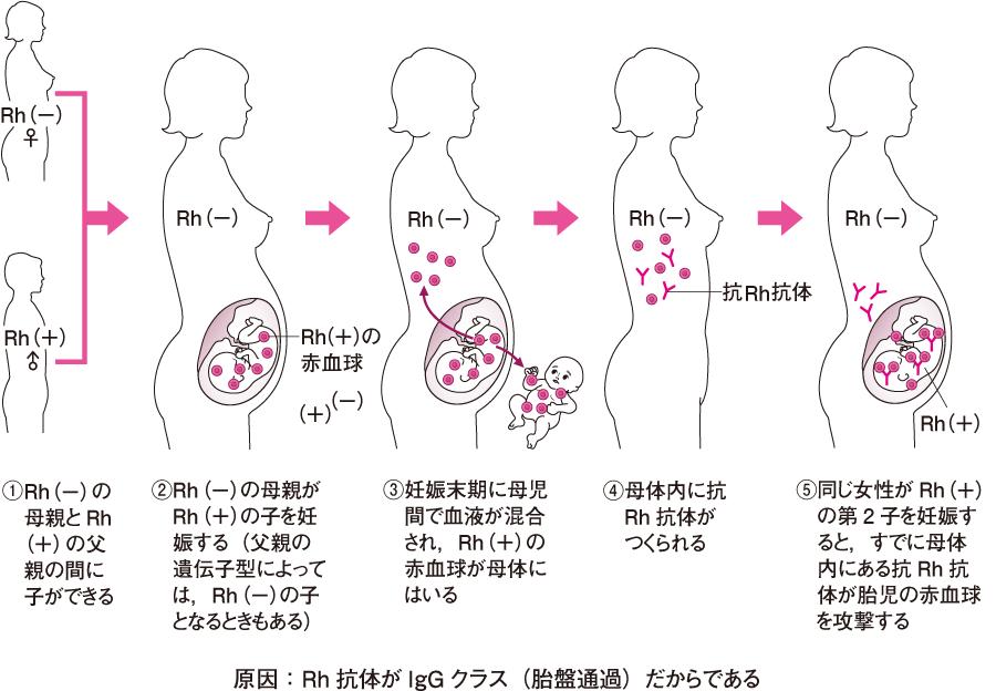 Rh式血液型の不適合妊娠