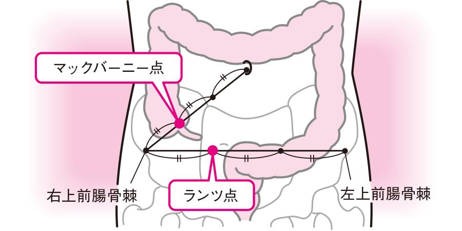 虫垂炎の圧痛点