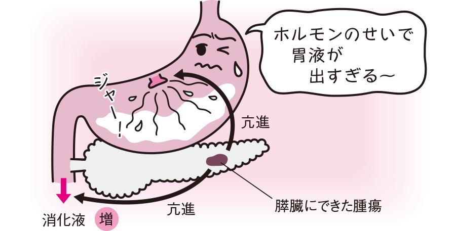 分泌性下痢