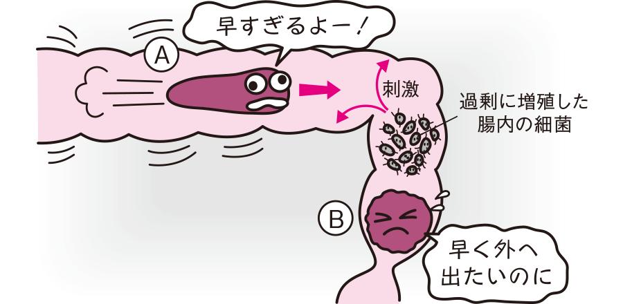 腸管運動性下痢