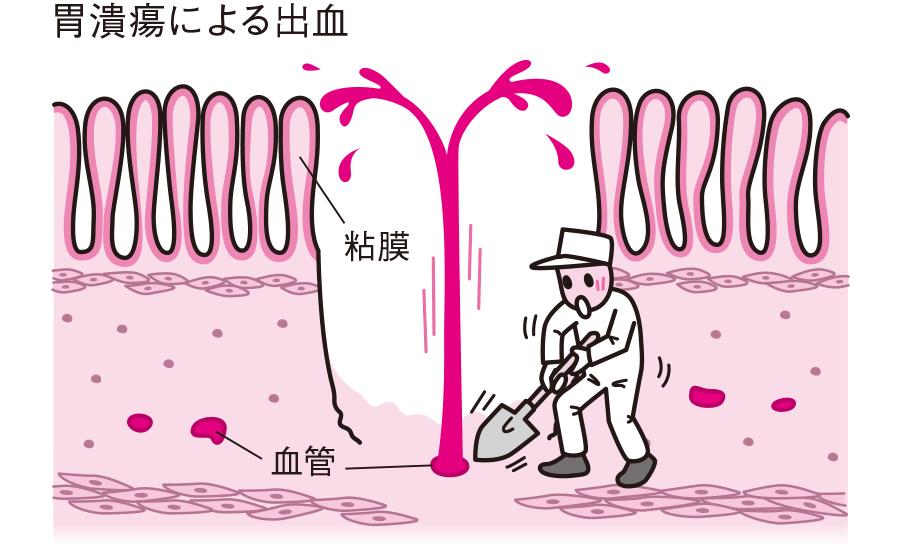 胃潰瘍による出血
