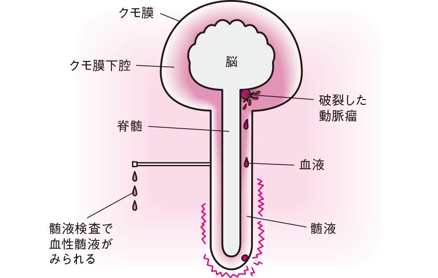 クモ膜下出血で起きる頭痛のメカニズム