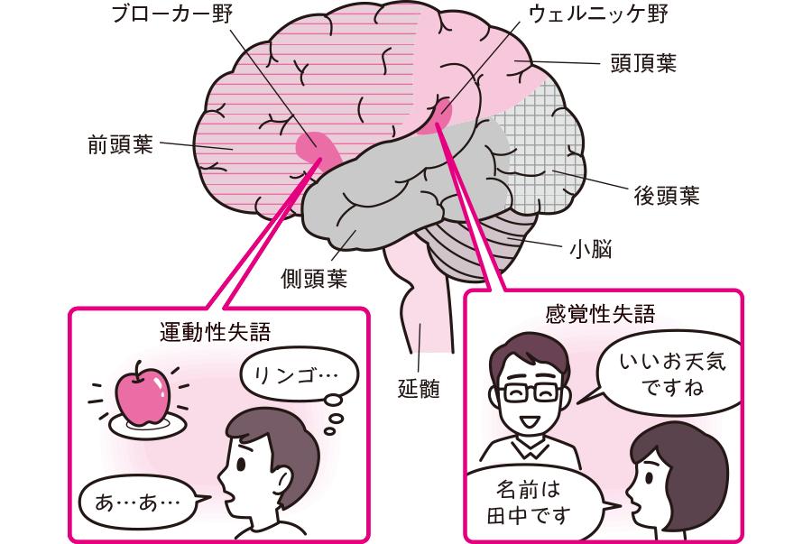運動性失語と感覚性失語