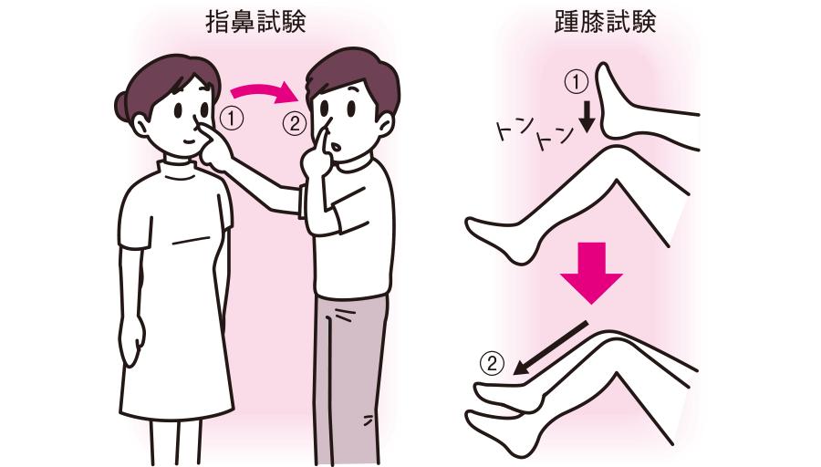 指鼻試験と踵膝試験