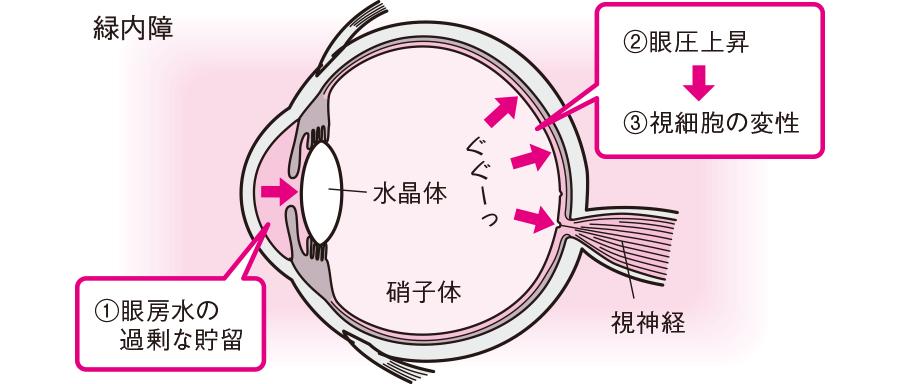 緑内障:眼圧上昇による視細胞の変性