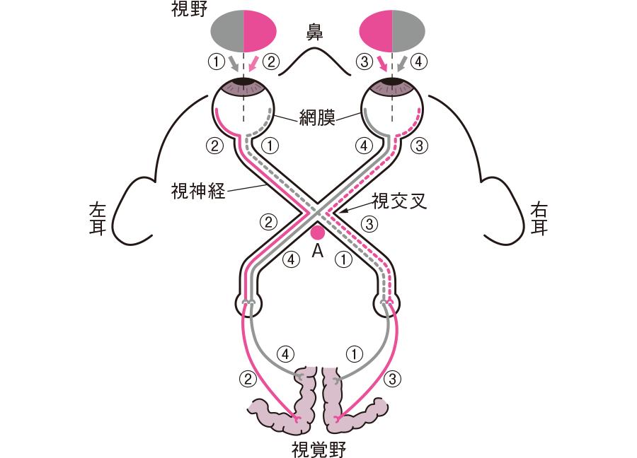 視野と視神経の走行ルート