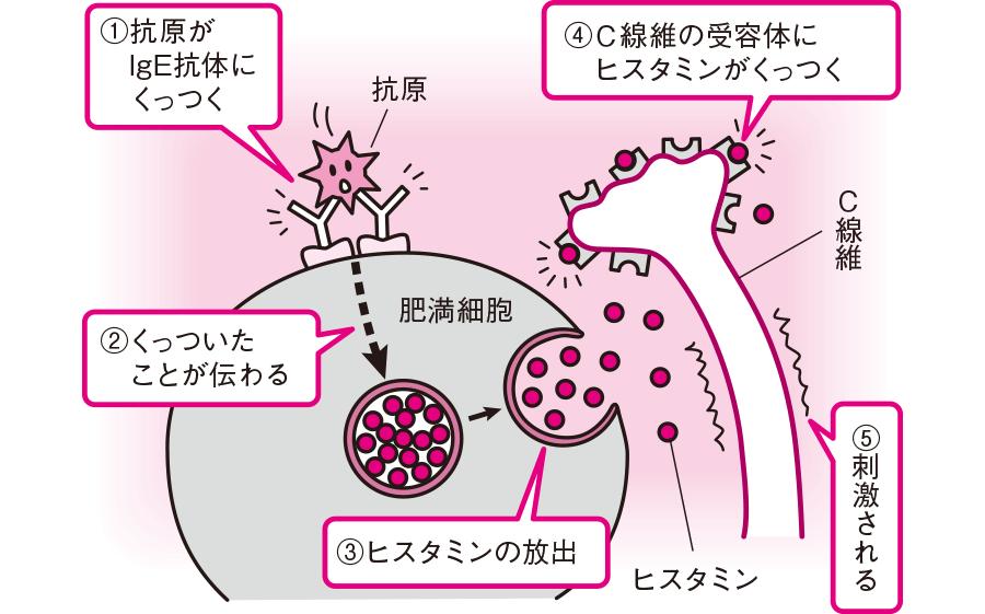 蕁麻疹でかゆみが起こるメカニズム