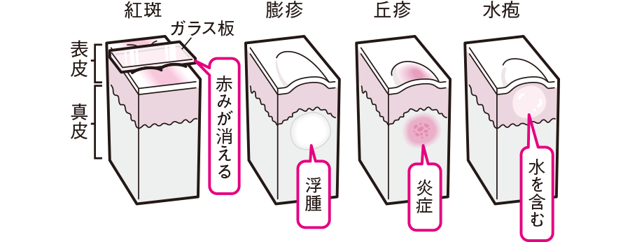 皮膚状態の特徴