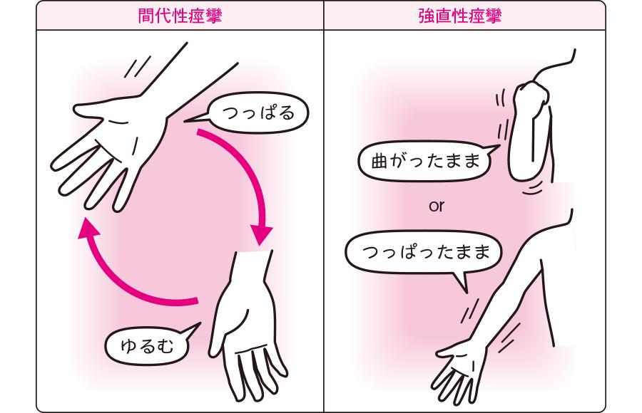 間代性痙攣と強直性痙攣
