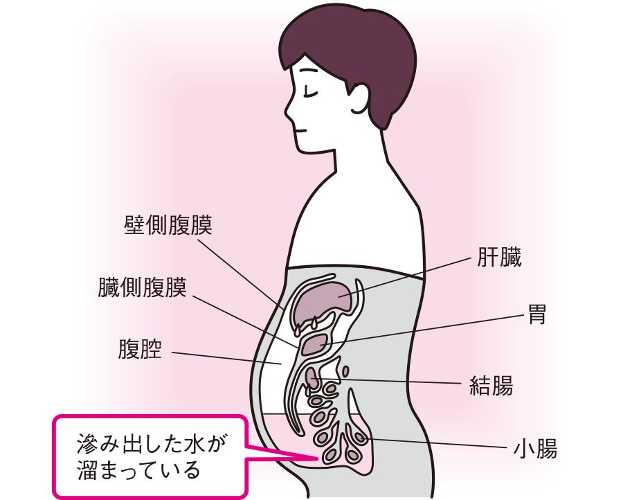 腹腔内の水量調整