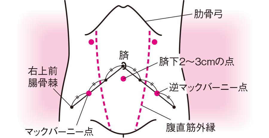 腹腔穿刺の目安