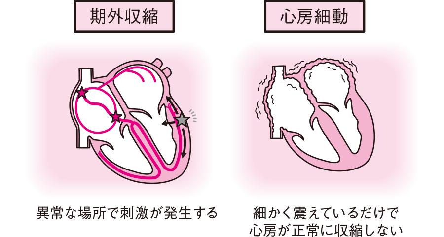 期外収縮と心房細動