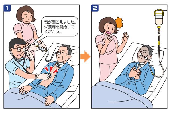 経鼻栄養チューブ誤挿入の事例イメージ