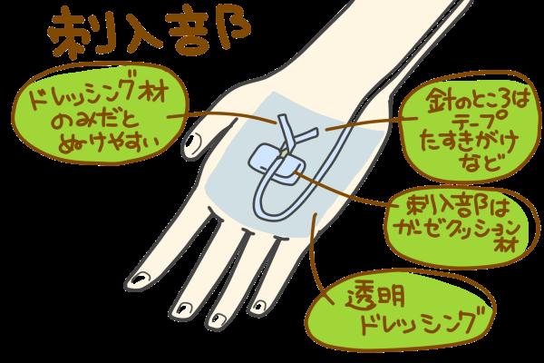 テープ固定のポイントをまとめた図。1. 針の部分は細いテープをたすきがけするなど、抜けづらい工夫を 2. 刺入部にはガーゼクッション材を使用(角度が変わらないように/摩擦による痛みの緩和)3. ドレッシング材で補強すること。