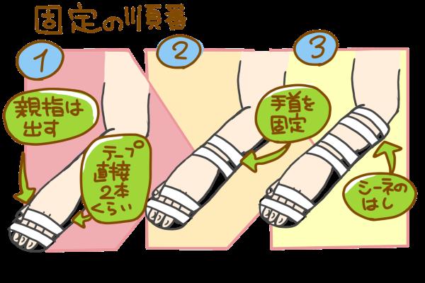 シーネで固定するときの順番。①親指は出して、テープを直接②本くらい巻く。②手首を固定する。③シーネの端を固定する。