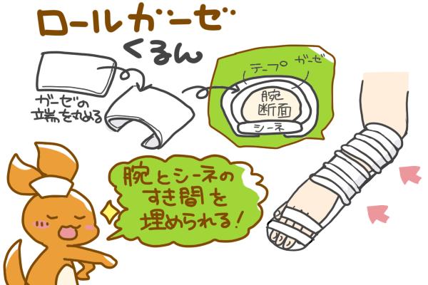 ロールガーゼの使用方法を表すイラスト。ガーゼの端を丸め、腕とテープの間にガーゼを挟むことで、腕とシーネの隙間を埋められ、皮膚トラブルも防ぐ事ができる。