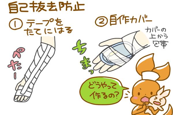 点滴の自己抜去防止の工夫を説明する図。①テープを縦にはる ②自作カバー