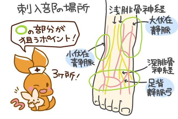 小児の足背点滴について、刺入部の場所を表す図表。