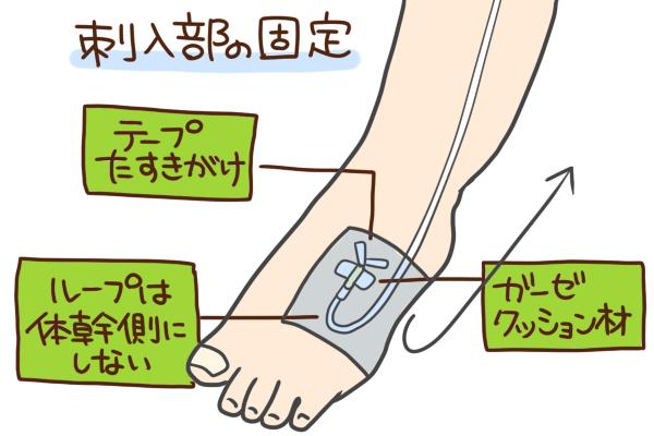 刺入部の固定方法について説明する図表。