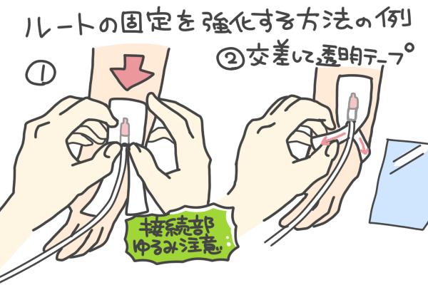 ルートの固定を強化する方法の例を表したイラスト。
