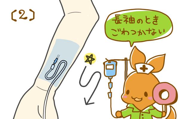 成人の前腕に点滴ルートを固定方法。(2)S字にあそびをつくる場合
