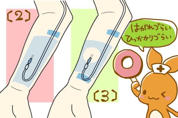 成人の前腕に点滴ルートを固定方法。(2,3)折り返す場合