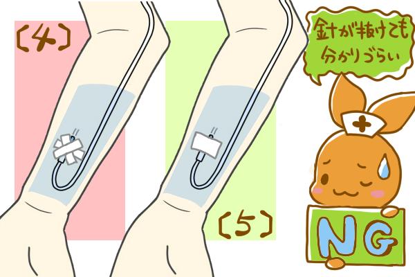 成人の前腕に点滴ルートを固定方法。(4,5)たすきがけをする場合