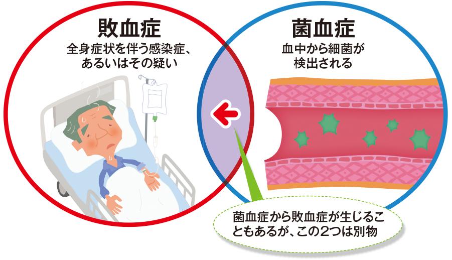敗血症と菌血症