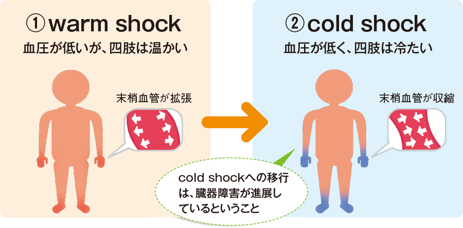 warm shockとcold shock