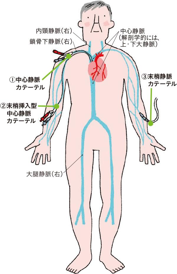 静脈内注射を行う際に使用されるラインと特徴