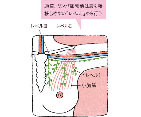 腋窩リンパ節