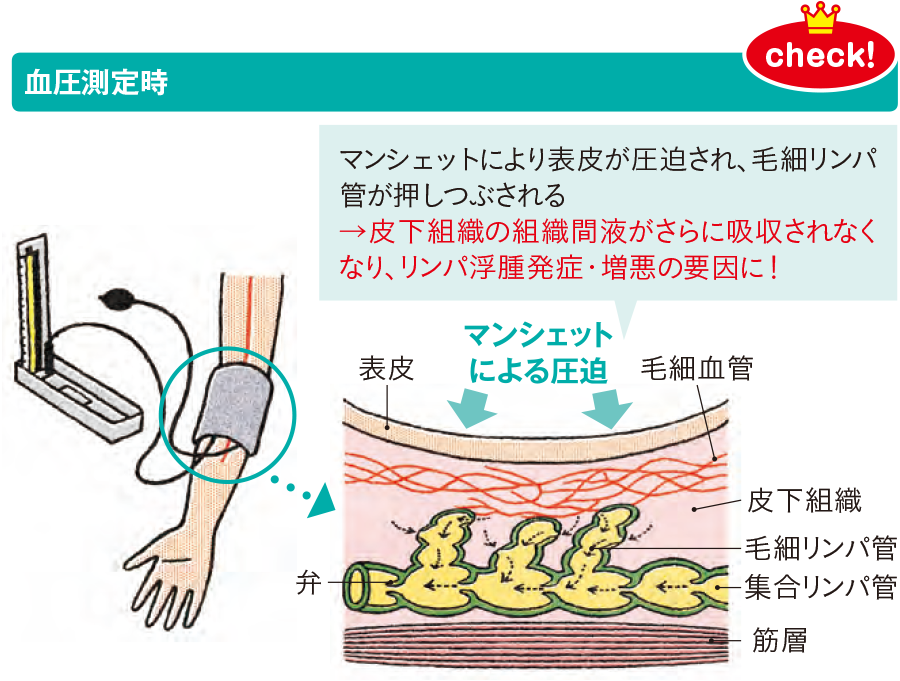 血圧測定がリンパ管に与える影響