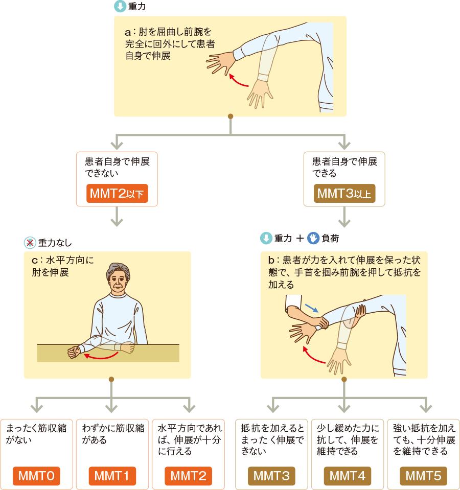 """肘関節の""""伸展""""の評価"""