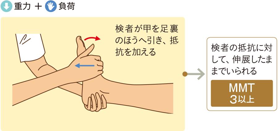 足関節の伸展