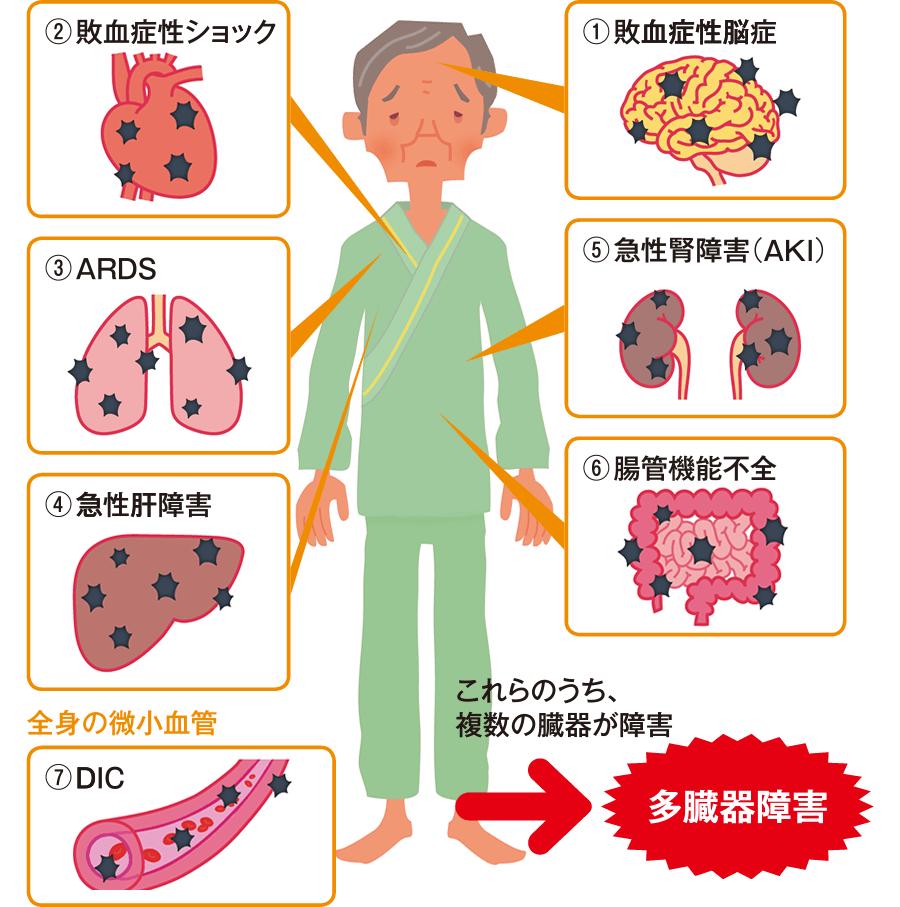敗血症の重篤化による臓器障害
