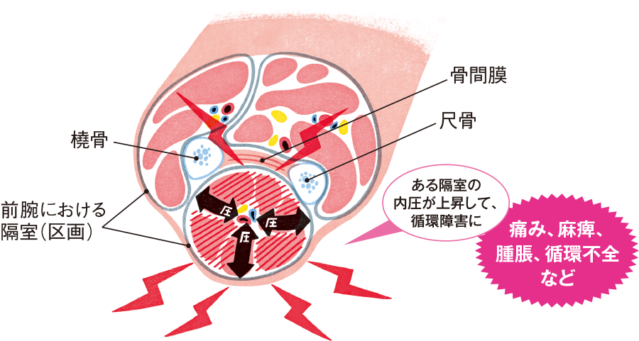 コンパートメント症候群(compartment syndrome、区画症候群)