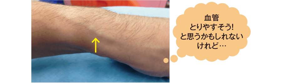 左手関節部の橈側皮静脈(リスクの高い穿刺部位)