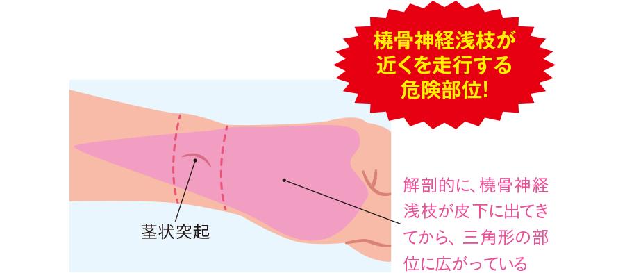 神経損傷のリスクが高い「魔の三角地帯」