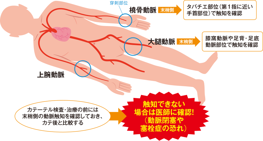 カテーテル検査でのアプローチ血管