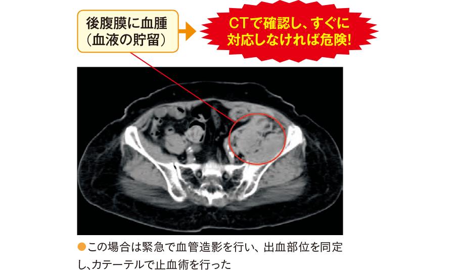 後腹膜血腫(CT像)