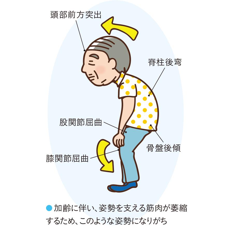 高齢者にみられる不良姿勢(前屈み姿勢)