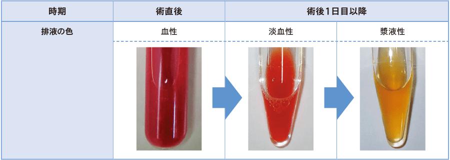 正常なドレーン排液の色の変化(肝切除の一例)