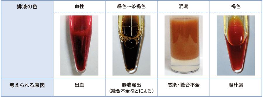 異常なドレーン排液の色と原因(例)