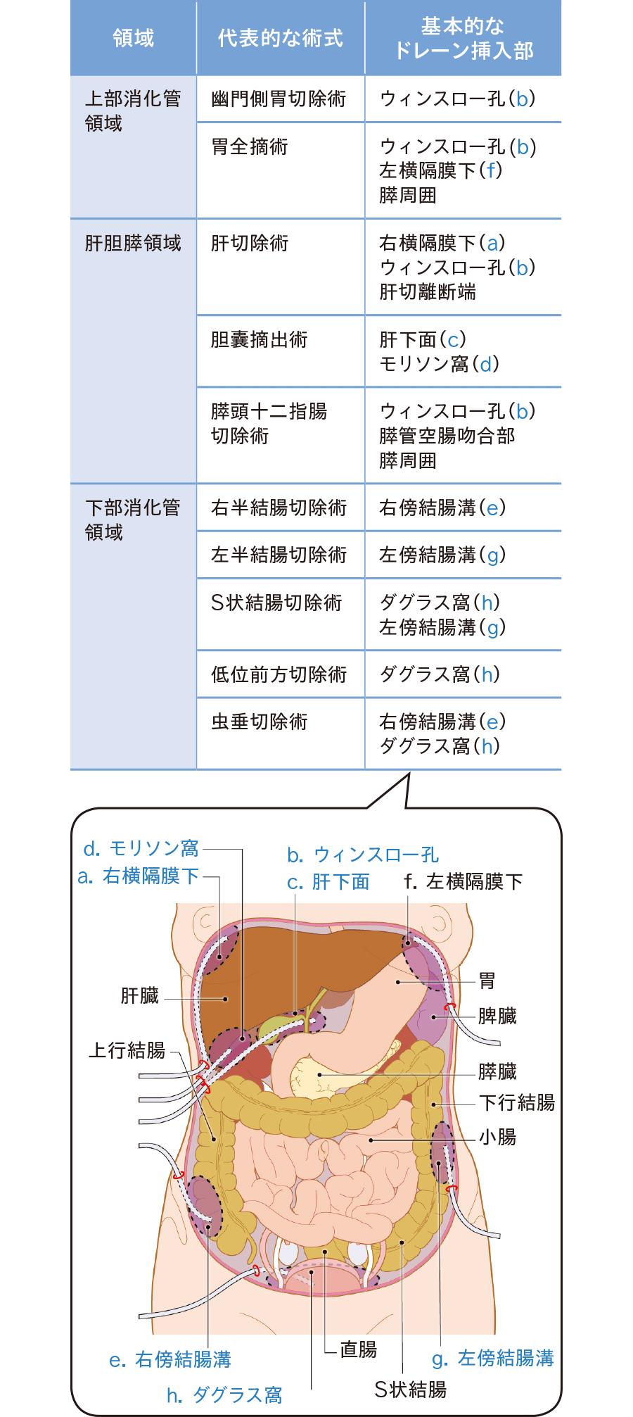 内視鏡手術における代表的な術式とドレーン挿入部