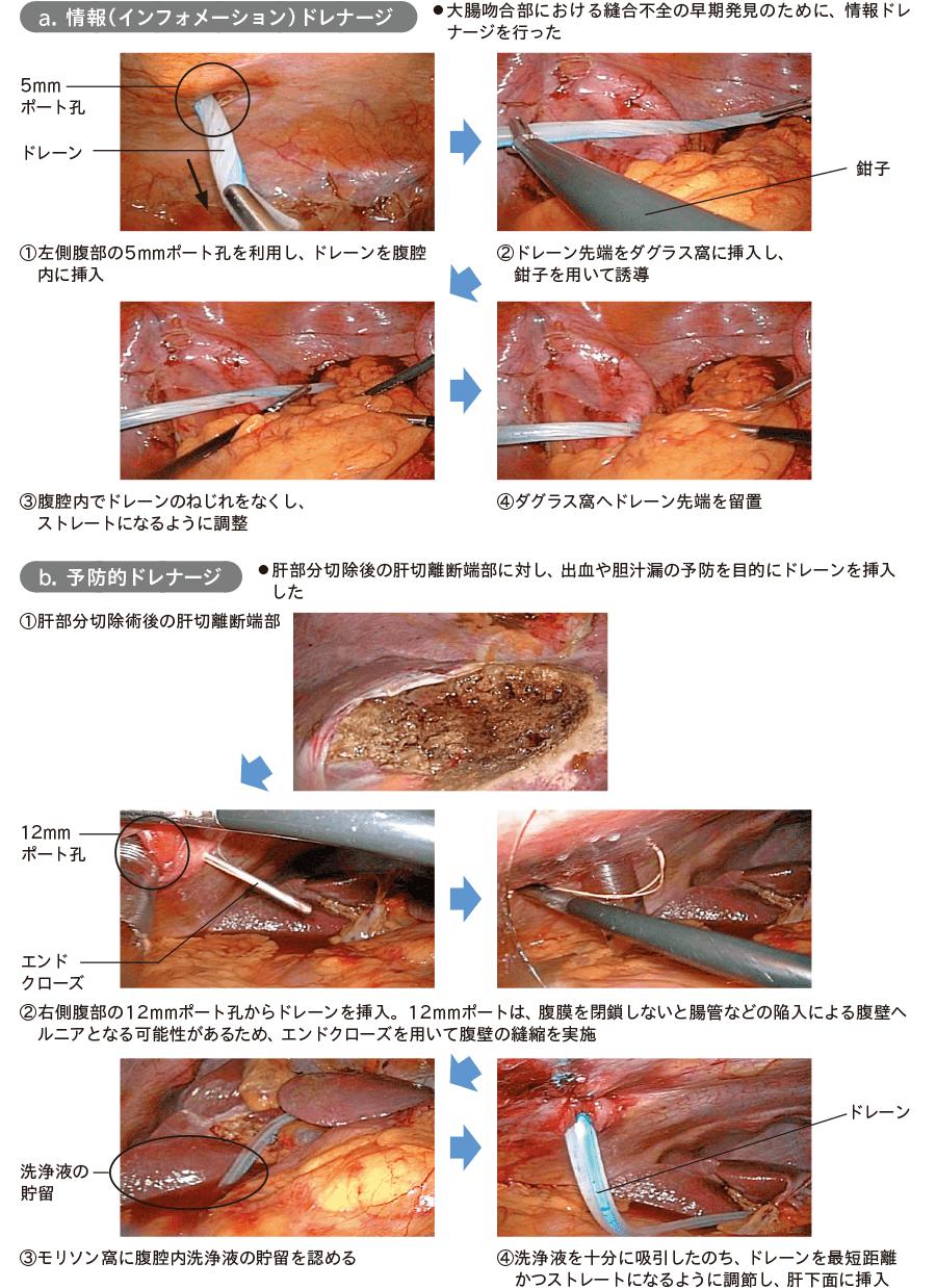 内視鏡手術におけるドレナージの例
