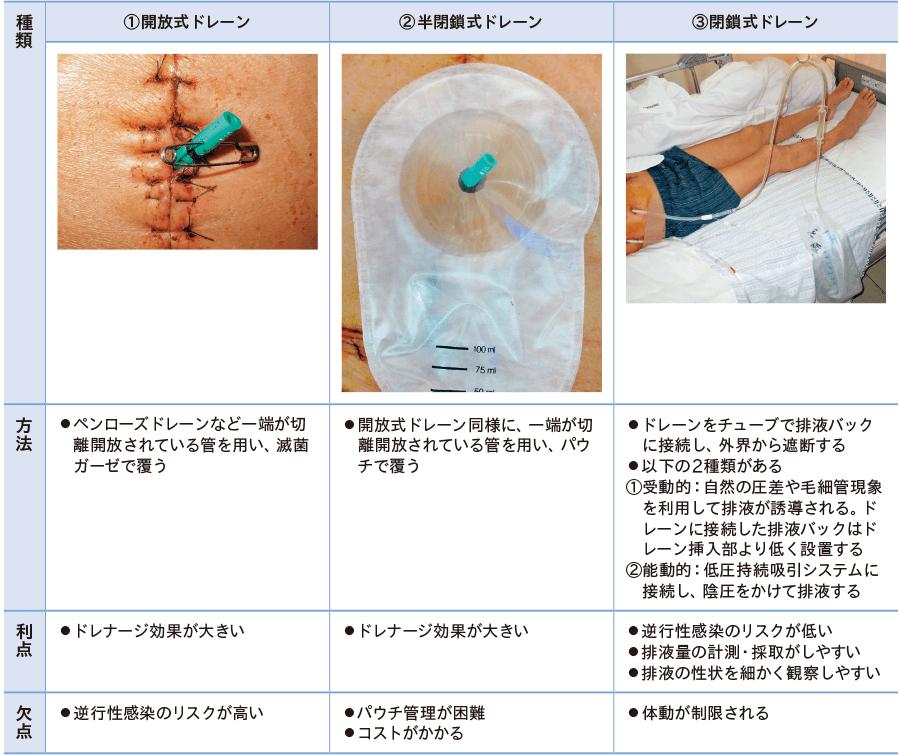 一般手術におけるドレーンの種類