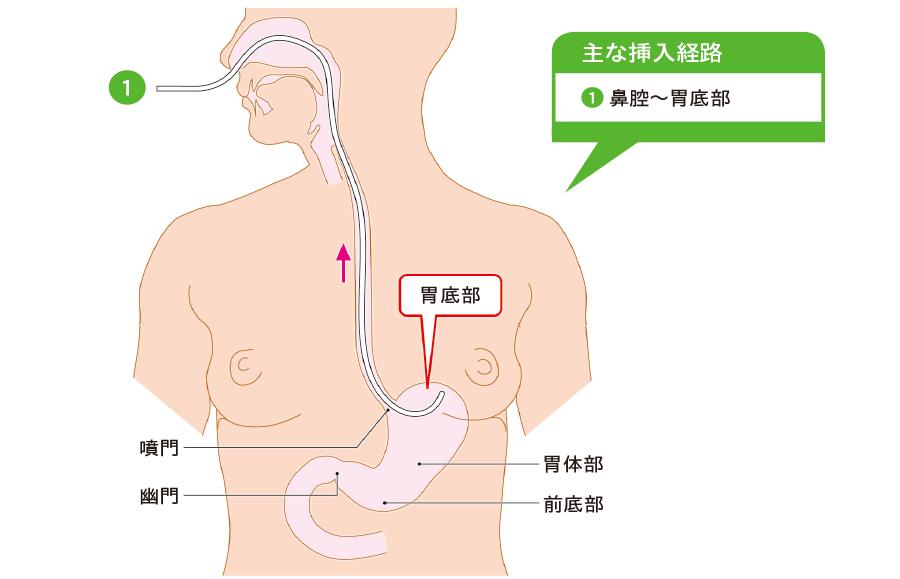 経鼻胃管の挿入経路