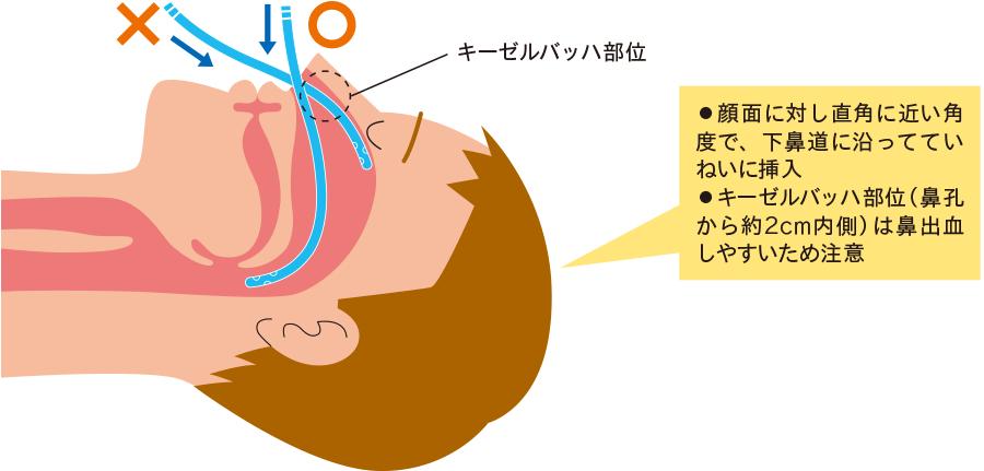 経鼻胃管挿入時の角度