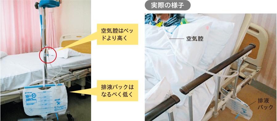 ベッドサイドでの経鼻胃管の設置方法
